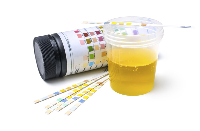 Urine Testing in Recovery